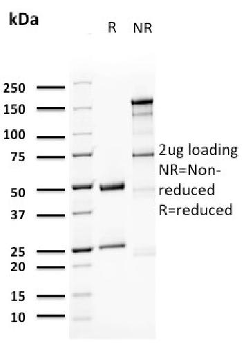 Anti-Uroplakin 1A (Urothelial Differentiation Marker) Monoclonal Antibody (Clone: UPK1A/2923)