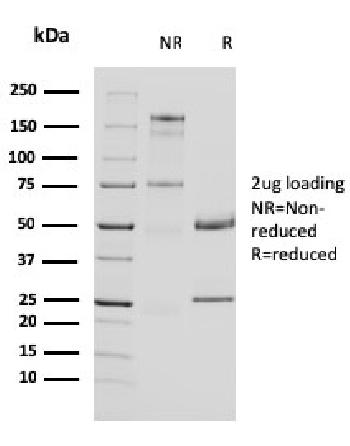Anti-Uroplakin 1A (Urothelial Differentiation Marker) Monoclonal Antibody (Clone: UPK1A/2924)