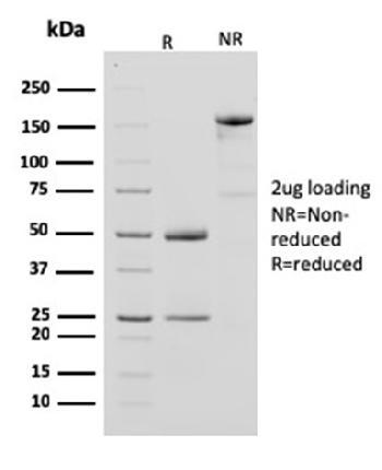Anti-Creatine Phosphokinase-BB (CK-BB) Monoclonal Antibody (Clone: CPTC-CKB-2)
