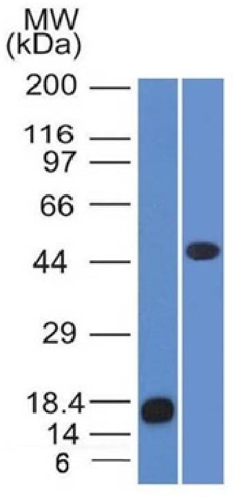 Anti-Adipophilin / Perilipin-2 (Marker of Lipid Accumulation) Monoclonal Antibody (Clone: ADFP/1365)
