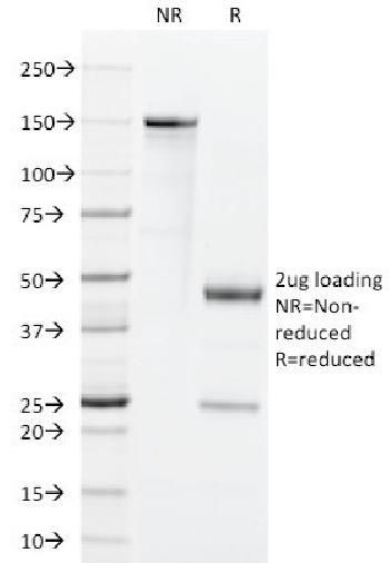 Anti-GM-CSF (Granulocyte/Macrophage - Colony Stimulating Factor) Monoclonal Antibody(Clone: BVD2-21C11)