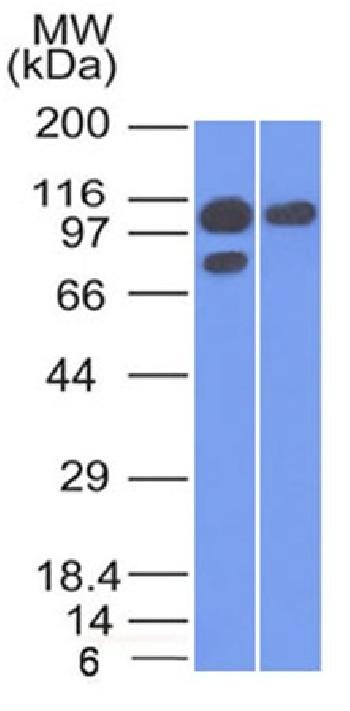 Anti-Catenin, alpha-1 (CTNNA1) Monoclonal Antibody(Clone: 1G5)