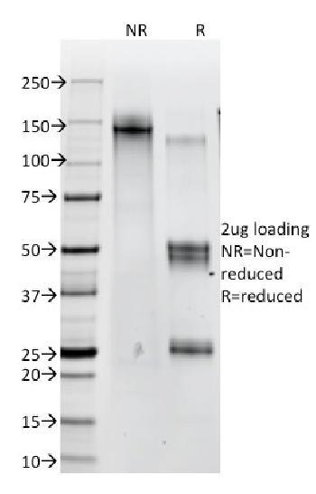 Anti-Catenin, beta (p120) Monoclonal Antibody(Clone: 12F7)