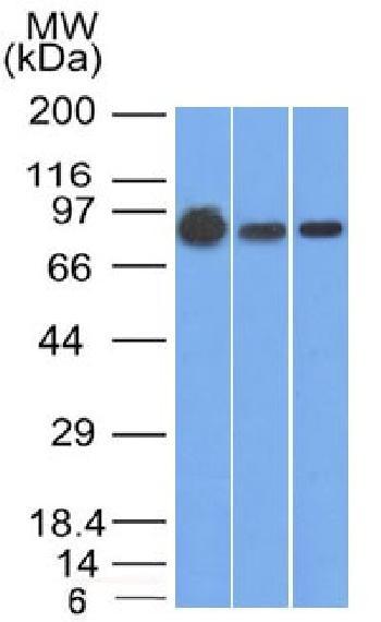 Anti-Catenin, beta (p120) Monoclonal Antibody(Clone: 9F2)