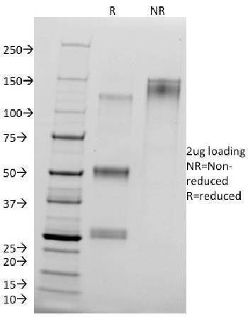 Anti-Catenin, delta-1 (CTNND1) (pTyr96) Monoclonal Antibody(Clone: 25a)