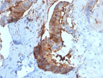 Anti-Cathepsin D (Tumor Marker) Monoclonal Antibody(Clone: CTSD/2781)