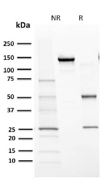 Anti-Cytochrome P450 1A1/1A2 Monoclonal Antibody(Clone: MC1)