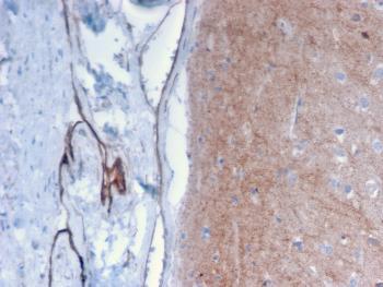 Anti-Drebrin 1 (DBN1) Monoclonal Antibody(Clone: DBN1/2879)