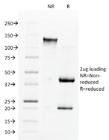 Anti-Angiotensin I Converting Enzyme (ACE) / CD143 Monoclonal Antibody(Clone: 9B9)
