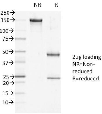 Anti-Desmoglein-1 (DSG1) Monoclonal Antibody(Clone: 27B2)