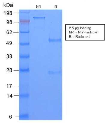 Anti-TAG-72 / CA72.4 (Tumor-Associated Glycoprotein) Monoclonal Antibody(Clone: CA72/2869R)