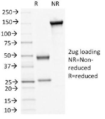 Anti-Desmoglein-3 (Squamous Cell Marker) Monoclonal Antibody(Clone: 5H10)