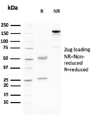 Anti-Desmoglein-3 (Squamous Cell Marker) Monoclonal Antibody(Clone: DSG3/2796)
