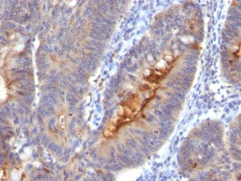 Anti-Secretory Component / ECM1 Monoclonal Antibody(Clone: SC05)