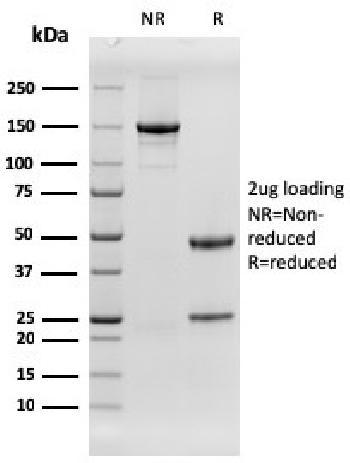 Anti-EGFR (Epidermal Growth Factor Receptor) Monoclonal Antibody(Clone: rGFR/1667)