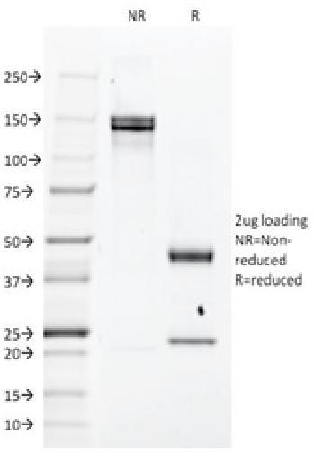 Anti-EGFR (Epidermal Growth Factor Receptor) Monoclonal Antibody(Clone: H9B4)