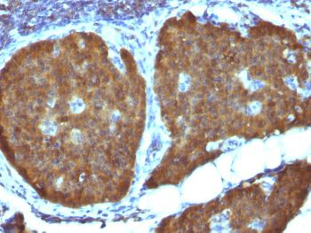 Anti-NSE gamma (Neuron Specific Enolase, gamma) (Neuroendocrine Marker) Monoclonal Antibody(Clone: ENO2/1462)