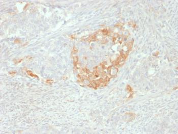 Anti-NSE gamma (Neuron Specific Enolase, gamma) (Neuroendocrine Marker) Monoclonal Antibody(Clone: NSE-P2)