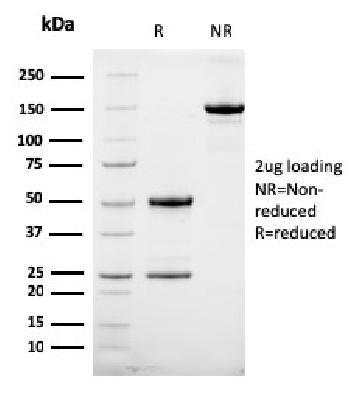 Anti-HER-2 / c-erbB-2 / neu / CD340 Monoclonal Antibody(Clone: HRB2/258)