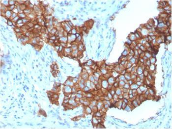 Anti-HER-2 / c-erbB-2 / neu / CD340 Monoclonal Antibody(Clone: ERBB2/3257)