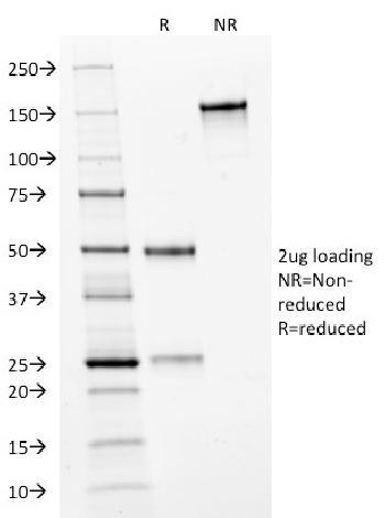 Anti-HER-2 / c-erbB-2 / neu / CD340 Monoclonal Antibody(Clone: HRB2/282)