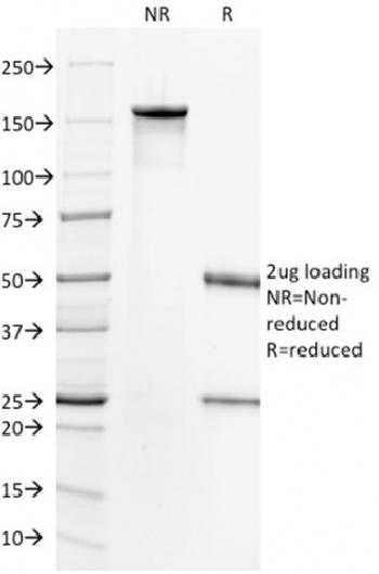 Anti-HER-2 / c-erbB-2 / neu / CD340 Monoclonal Antibody(Clone: HRB2/718)