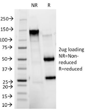 Anti-HER-2 / c-erbB-2 / neu / CD340 Monoclonal Antibody(Clone: HRB2/273)
