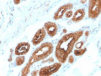 Anti-HER-4 / ERBB4 Monoclonal Antibody(Clone: ERBB4/2581)