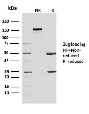 Anti-ERCC1 / RAD10 (Tumor Progression Marker) Monoclonal Antibody(Clone: ERCC1/2683)