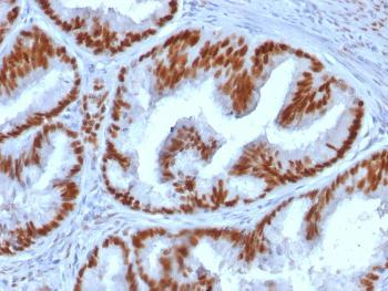 Anti-Estrogen Receptor, alpha (Marker of Estrogen Dependence) Monoclonal Antibody(Clone: ESR1/1935)
