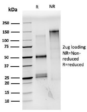 Anti-Estrogen Receptor, alpha (Marker of Estrogen Dependence) Monoclonal Antibody(Clone: ESR1/3559)