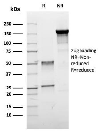 Anti-ER-beta-1 (Estrogen Receptor beta-1) Monoclonal Antibody(Clone: ESR2/3005)