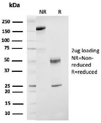 Anti-ER-beta-1 (Estrogen Receptor beta-1) Monoclonal Antibody(Clone: ESR2/3207)