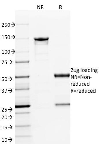 Anti-ETS1 (Marker of Tumor Metastasis) Monoclonal Antibody(Clone: ETS1/1801)