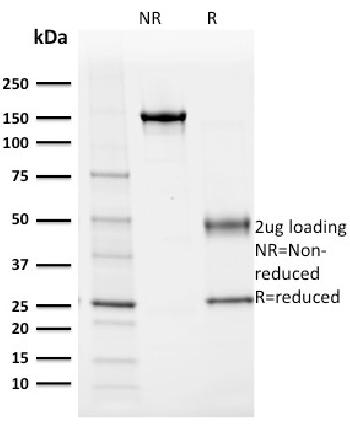 Anti-Albumin (Transport Protein) Monoclonal Antibody(Clone: ALB/2355)