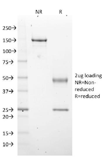 Anti-EZH2 / KMT6 Monoclonal Antibody(Clone: EZH2/2536)