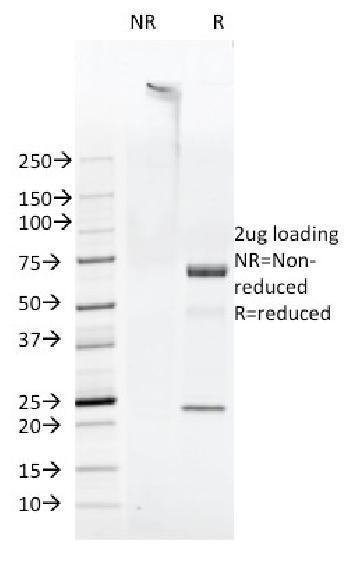 Anti-FAT1 (FAT atypical cadherin 1) Monoclonal Antibody(Clone: FAT1-3D7/1)