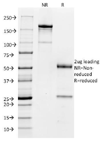 Anti-CD32 (Fc Gamma RIIa) Monoclonal Antibody(Clone: FCGR2A/479)