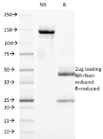 Anti-CD32 (Fc Gamma RIIa) Monoclonal Antibody(Clone: 7.3)