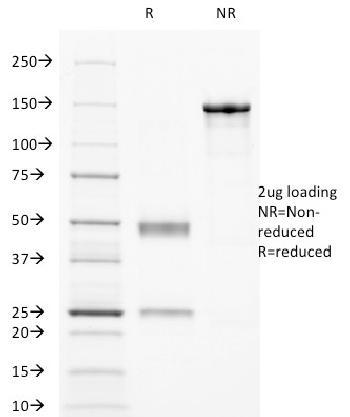 Anti-CD32 (Fc Gamma RIIa) Monoclonal Antibody(Clone: 8.7)