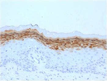 Anti-Filaggrin (Keratinocyte Differentiation Marker) Monoclonal Antibody(Clone: FLG/1561)