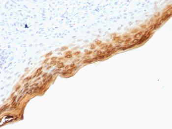 Anti-Filaggrin (Keratinocyte Differentiation Marker) Monoclonal Antibody(Clone: SPM181)