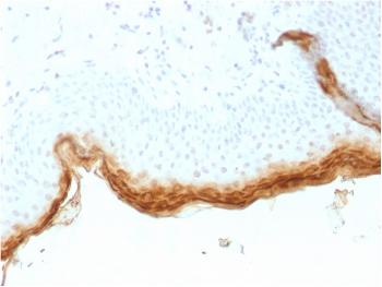 Anti-Filaggrin (Keratinocyte Differentiation Marker) Monoclonal Antibody(Clone: rFLG/1561)