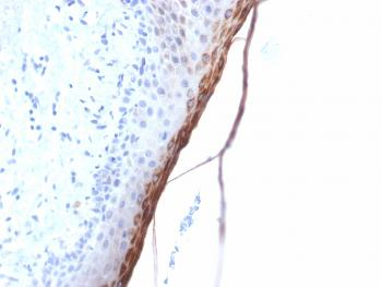Anti-Filaggrin (Keratinocyte Differentiation Marker) Monoclonal Antibody(Clone: FLG/1957R)