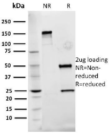 Anti-Fibronectin Monoclonal Antibody(Clone: Fn-3)