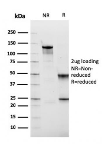 Anti-Fibronectin Monoclonal Antibody(Clone: FN1/2949)