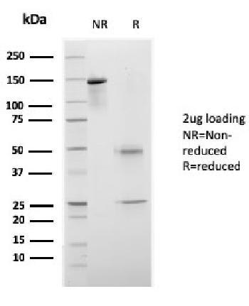 Anti-CELA3B / ELA3B (Pancreatic Function Marker) Monoclonal Antibody(Clone: rCELA3B/1811)