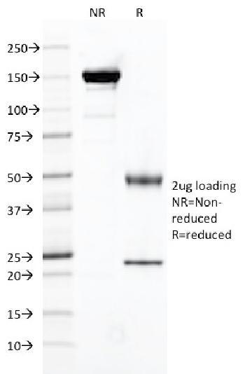 Anti-FOLH1 / PSMA (Prostate Epithelial Marker) Monoclonal Antibody(Clone: FOLH1/2121)