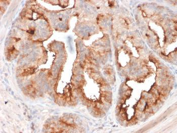 Anti-FOLH1 / PSMA (Prostate Epithelial Marker) Monoclonal Antibody(Clone: FOLH1/2354)