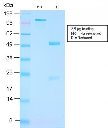 Anti-FOLH1 / PSMA (Prostate Epithelial Marker) Monoclonal Antibody(Clone: FOLH1/3149R)
